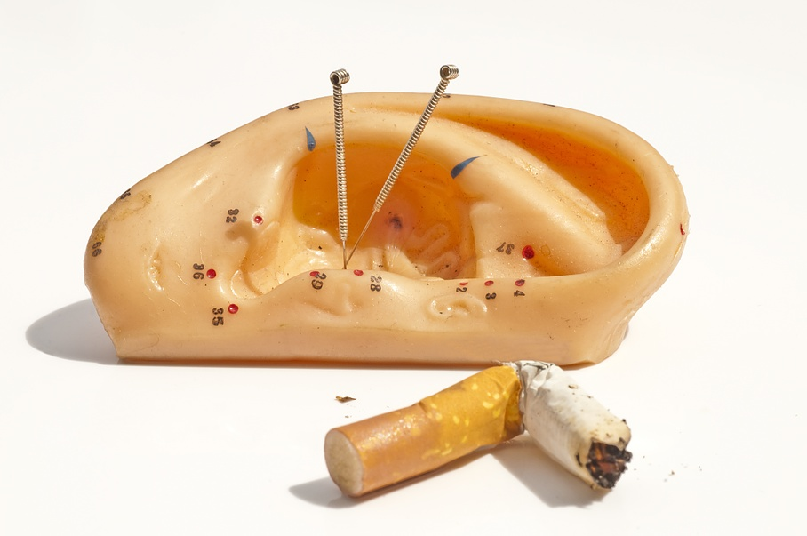 Stopping smoking - China Clinic TCM - Lausanne